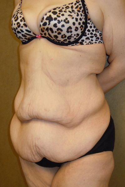 Before & After Tummy Tuck Philadelphia