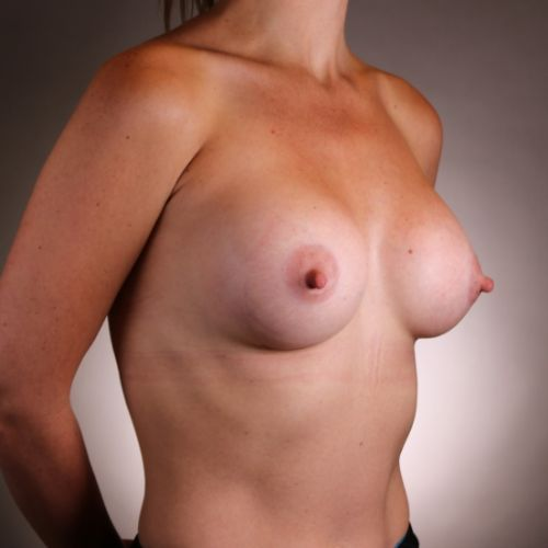 Before & After Breast Augmentation Philadelphia