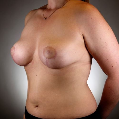 Before & After Breast Lift With Implants Philadelphia
