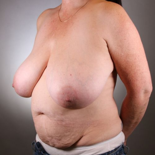 Before & After Breast Reduction Philadelphia