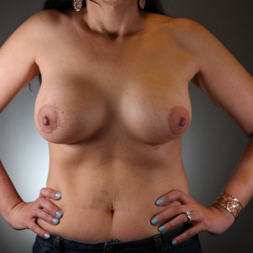 Before & After Breast Implant Removal Philadelphia