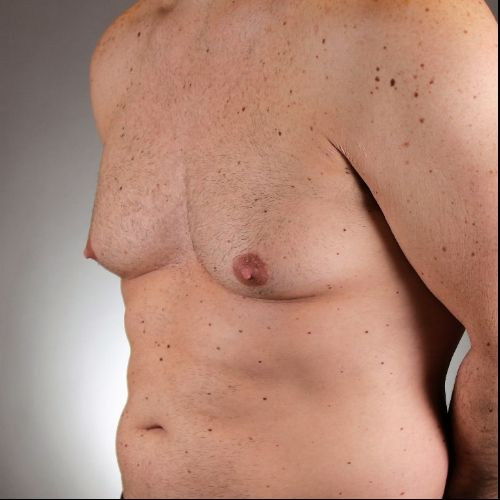Before & After Gynecomastia Surgery Philadelphia